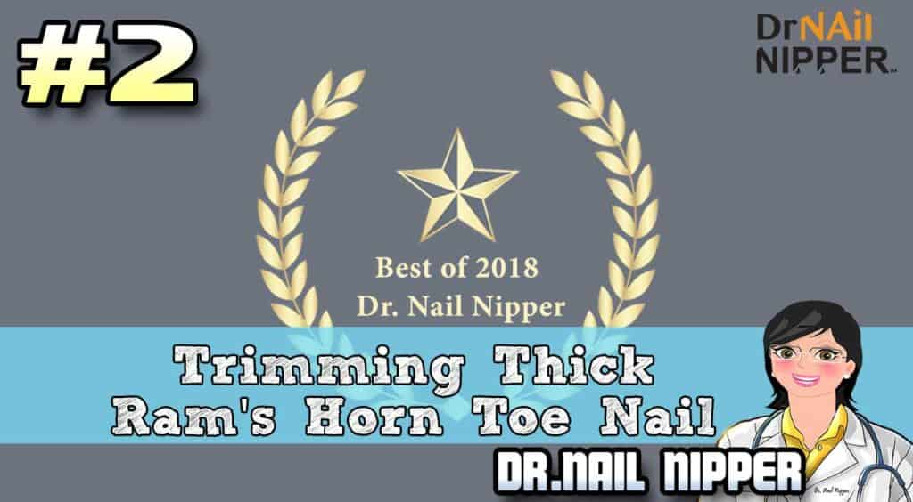 Dr Nail Nipper Channel 3