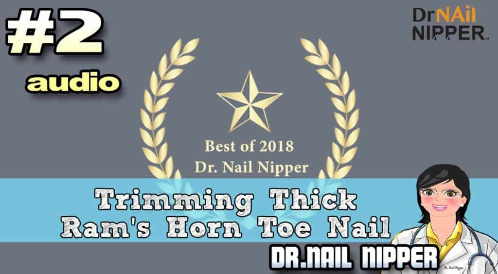 Dr Nail Nipper Channel 2