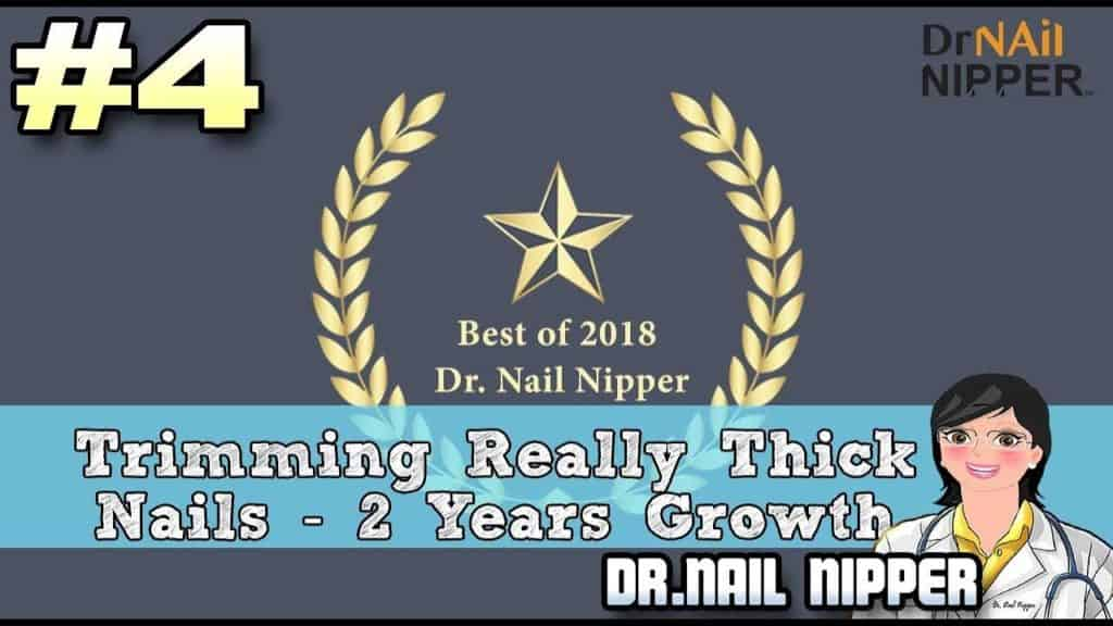 Dr Nail Nipper Channel 5
