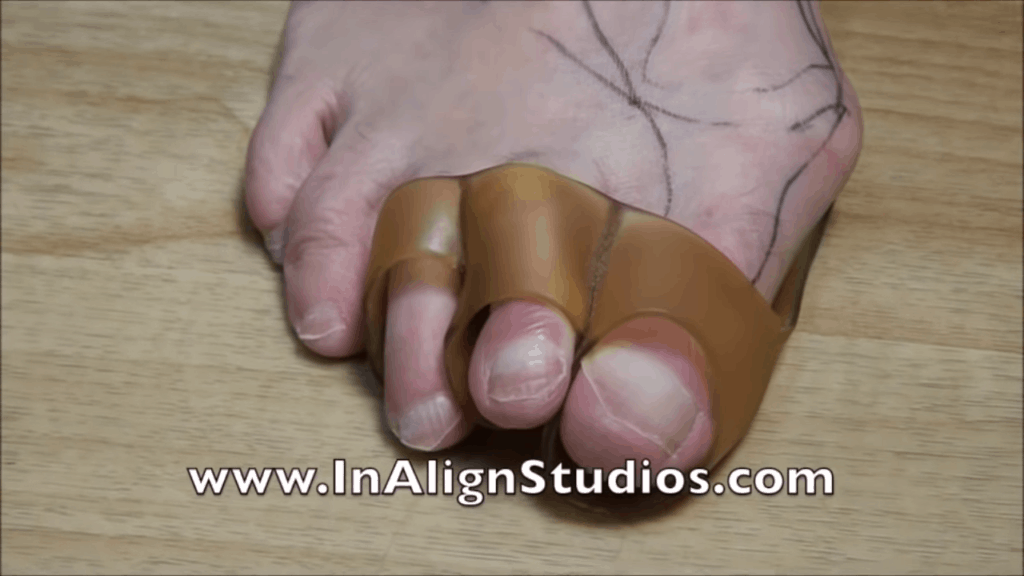 InAlign for Bunions 2